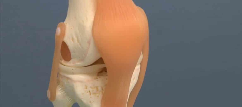 Legamenti e menisco ginocchio