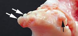 osteofita in artrosi ginocchio