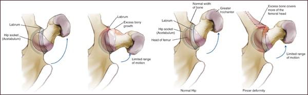 artroscopia anca milano per il conflitto femoro-acetabolare