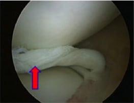ecografia di lesione menisco