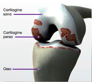 Gonartrosi: necessaria protesi ginocchio