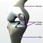 Protesi ginocchio monocompartimentale