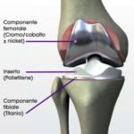 Protesi ginocchio totale