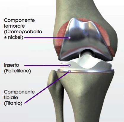 Protesi totale