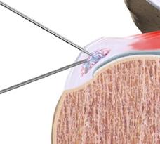 Lavaggio calcificazione di spalla ecoguidato