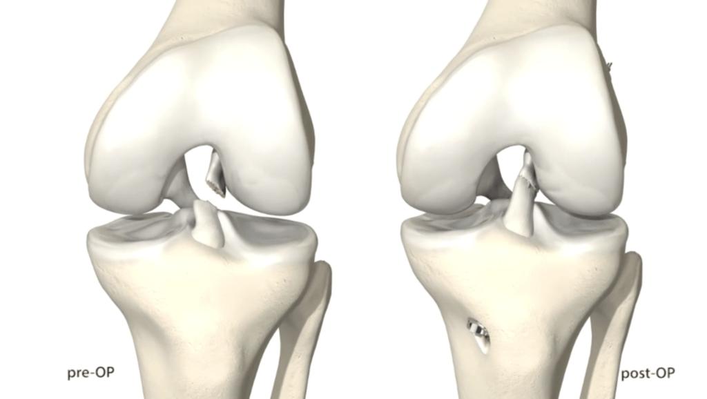 Rottura dei legamenti ginocchio e ricostruzione