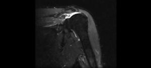 Lesione subtotale del sovraspinato
