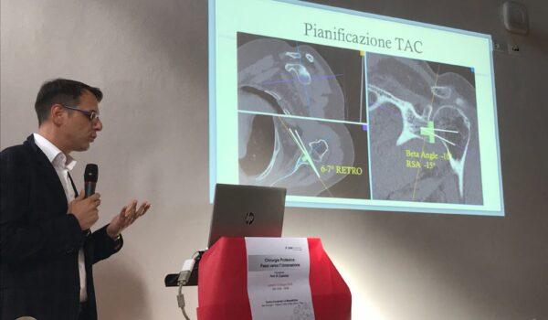 innovazione tecnologia protesi spalla