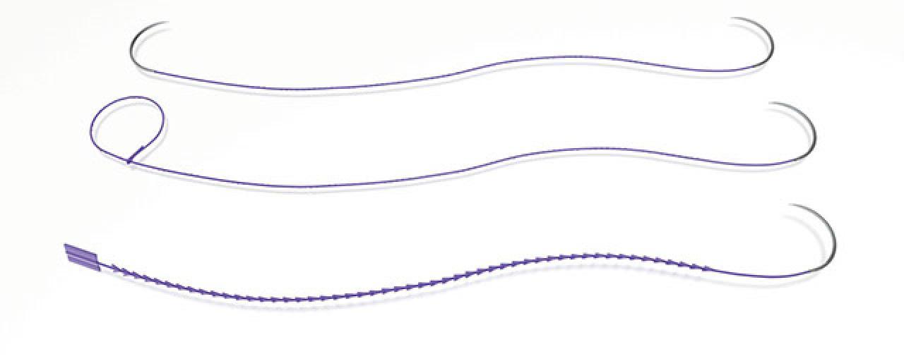 suture ritentive fast track recupero rapido
