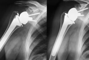 intervento di protesi di spalla