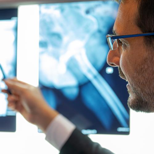 protesi anca: valutazione